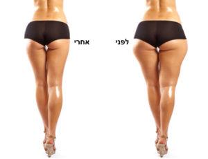 שאיבת שומן - לפני ואחרי